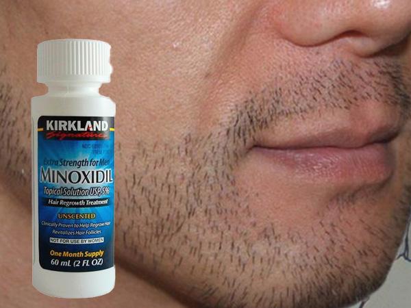 Thuốc mọc râu Minoxidil - thích hợp cho người đang nuôi râu
